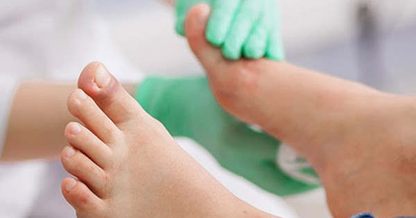 Gout causes and treatment